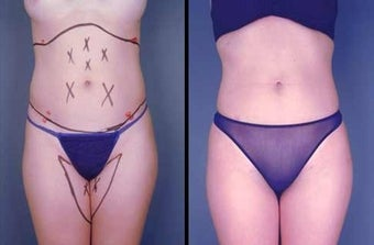 Tumescent Liposuction before 996375