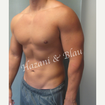 18-24 year old man treated with Male Breast Reduction after 3332915
