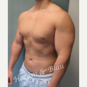 18-24 year old man treated with Male Breast Reduction before 3332915