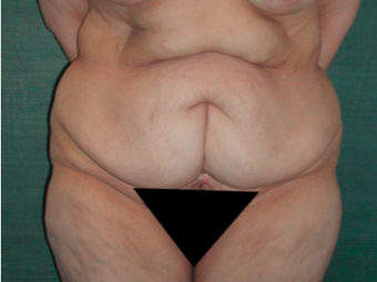 45-54 year old woman treated with Tummy Tuck before 3417816