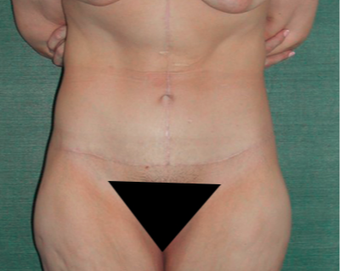 45-54 year old woman treated with Tummy Tuck after 3417816