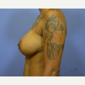 35-44 year old woman treated with Breast Implant Revision before 3421697