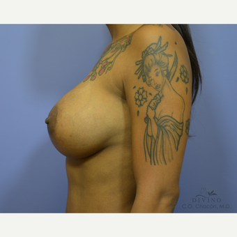 35-44 year old woman treated with Breast Implant Revision after 3421697