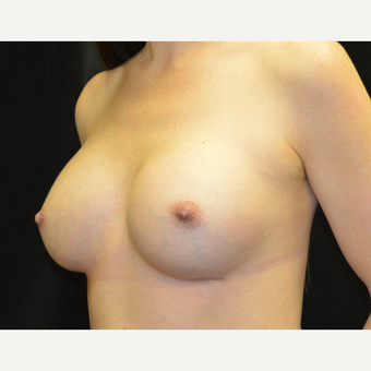 35-44 year old woman treated with Breast Implants after 3181843