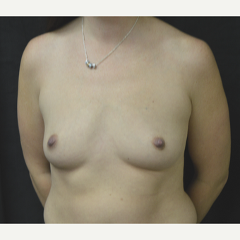 35-44 year old woman treated with Breast Implants before 3181843