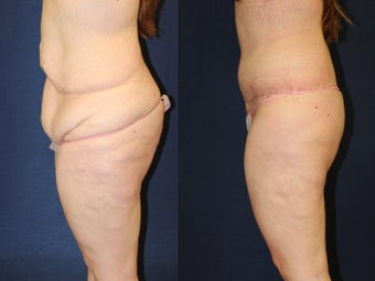 29 year old woman treated for excess skin following weight loss before 1251779