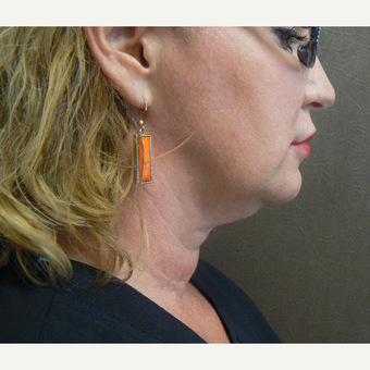 45-54 year old woman treated with Kybella before 3588618
