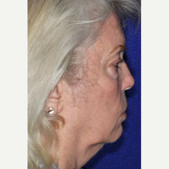 55-64 year old woman treated with Facelift before 3848963