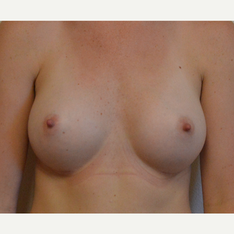 25-34 year old woman treated with Breast Augmentation after 3581553