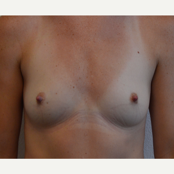 25-34 year old woman treated with Breast Augmentation before 3581553