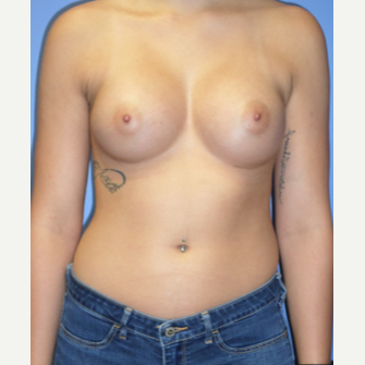 18-24 year old woman treated with Breast Implants after 3370267