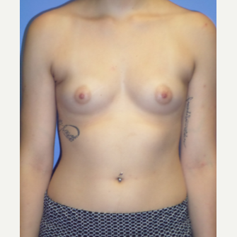 18-24 year old woman treated with Breast Implants before 3370267