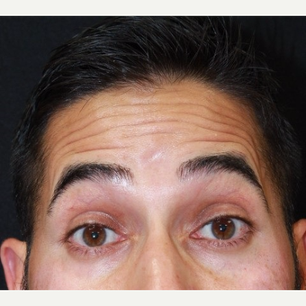 37 year old male treated with Botox for forehead lines before 3128880