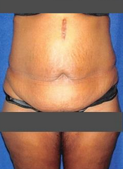Tummy Tuck with Liposuction before 1490469