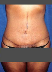 Tummy Tuck with Liposuction after 1490469
