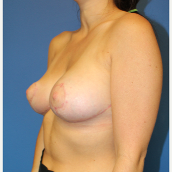 18-24 year old woman treated with Breast Reduction after 3459489