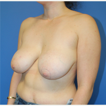18-24 year old woman treated with Breast Reduction before 3459489