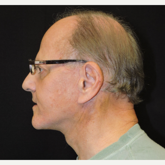 55-64 year old man treated with Facelift after 3331379