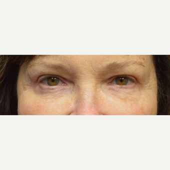 65-74 year old woman treated with Eyelid Surgery after 3162151