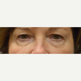 65-74 year old woman treated with Eyelid Surgery before 3162151