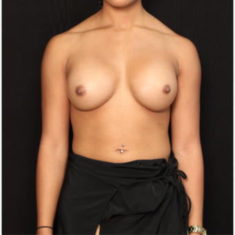 26 year old female with bilateral submuscular silicone implants placed through the underarm after 3522685