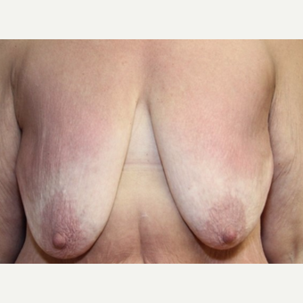 41 year old woman with a bilateral breast augmentation with mastopexy before 3060581