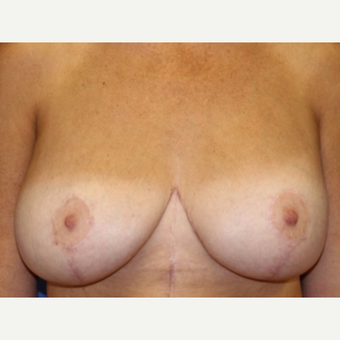 41 year old woman with a bilateral breast augmentation with mastopexy after 3060581