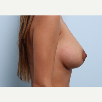 Breast Augmentation after 3377875