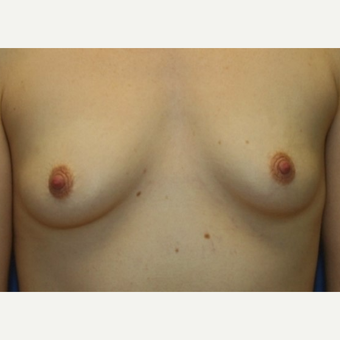 28 year old bilateral nipple sparring mastectomies with immediate implant recoimplant reconstruction before 3042373