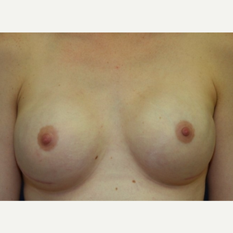 28 year old bilateral nipple sparring mastectomies with immediate implant recoimplant reconstruction after 3042373