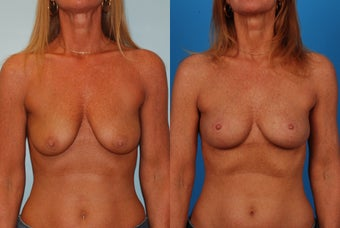 Breast Lift: 45-Year-Old Woman before 1049647