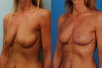 Breast Lift: 45-Year-Old Woman after 1049647