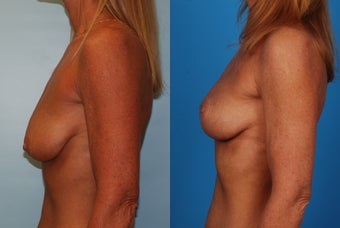Breast Lift: 45-Year-Old Woman 1049647