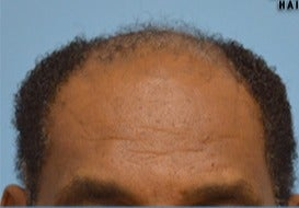 55-64 year old man treated with Hair Transplant before 3604635