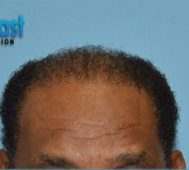 55-64 year old man treated with Hair Transplant after 3604635