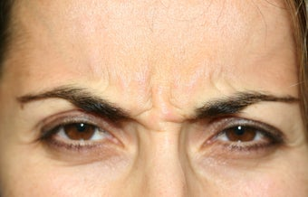 Botox in the Glabella before 1168428