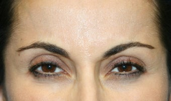 Botox in the Glabella after 1168428