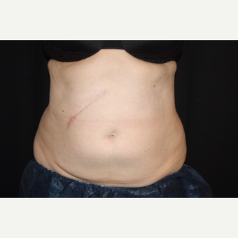 55-64 year old woman treated with CoolSculpting after 3366329