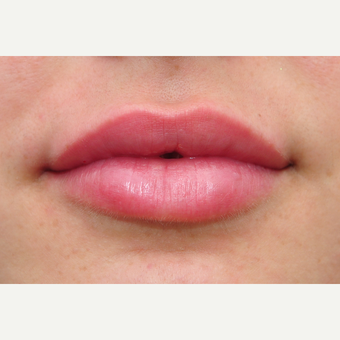 Lip augmentation for fuller lips after 3097336
