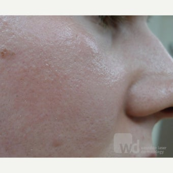 25-34 year old woman treated with Acne Scars Treatment with excellent reduction in pore size.