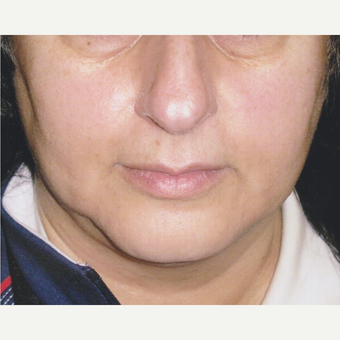 54 year old woman with Acne Scars Treatment after 3055593