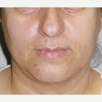 54 year old woman with Acne Scars Treatment before 3055593