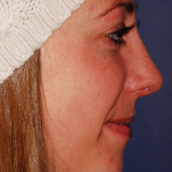 25-34 year old woman treated with Rhinoplasty after 3624343
