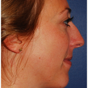 25-34 year old woman treated with Rhinoplasty before 3624343