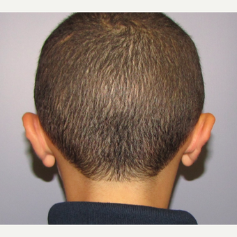 6 year old boy underwent otoplasty for prominent ears after 3432486