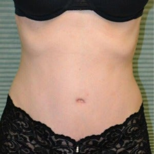 32 year old woman treated with Tummy Tuck after 2130059