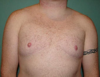Late results of FTM chest masculinization  after 867233