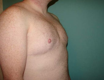Late results of FTM chest masculinization  867233