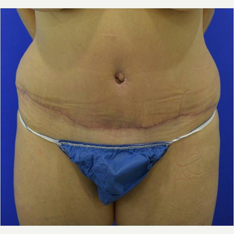 50 year old woman treated with Tummy Tuck after 3727043