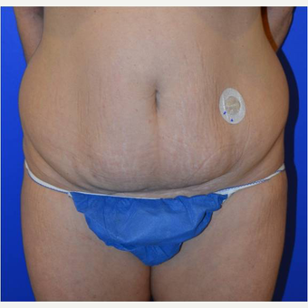 50 year old woman treated with Tummy Tuck before 3727043